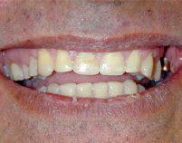 After - Hilltop Dental