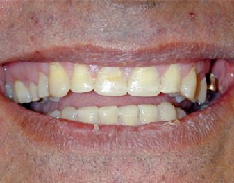 After - Lenham Dental