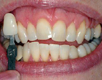 After - Lenham Dental