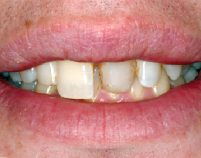 Before - Hilltop Dental