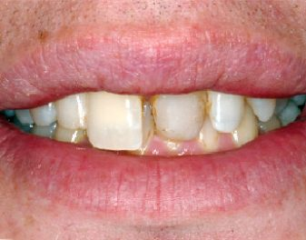 Before - Lenham Dental