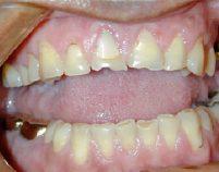 Before - Hilltop Dental