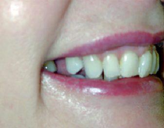 Before - Lenham Dental